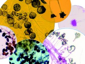 Mold and mold spores